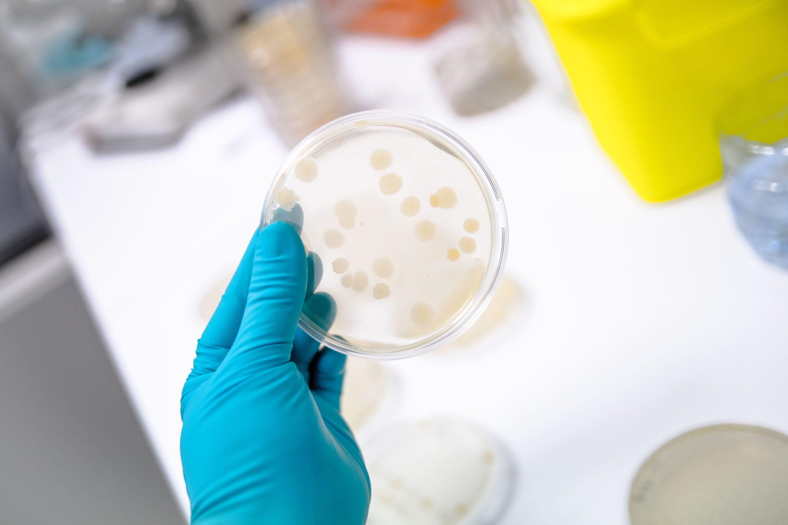 boite de pétri colonie microbiologie bifinove